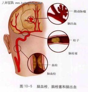 脑血栓怎样吃三七粉?