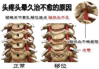 颈椎病的临床表现及三七粉对颈椎